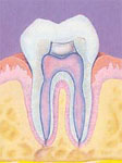 Root Canal After